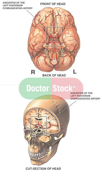 This medical exhibit shows an inferior brain view and an anterior cut-away view of the skull and brain to reveal a (berry) Aneurysm of the Left Posterior Communicating Artery.