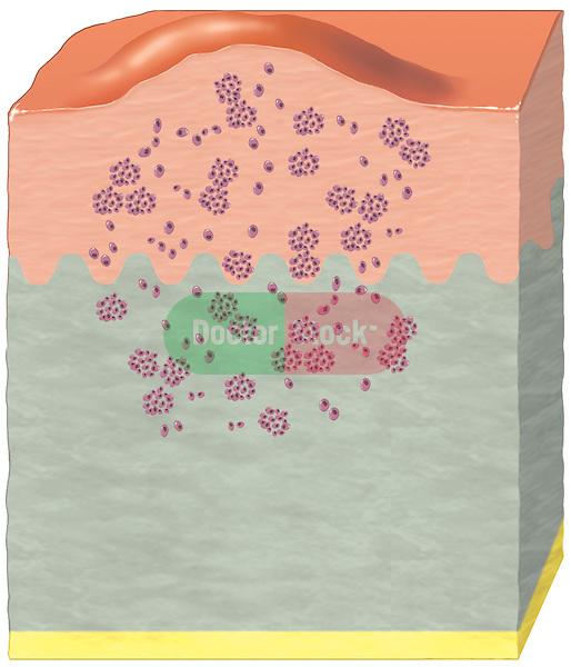 Skin Cancer - Malignant Melanoma.