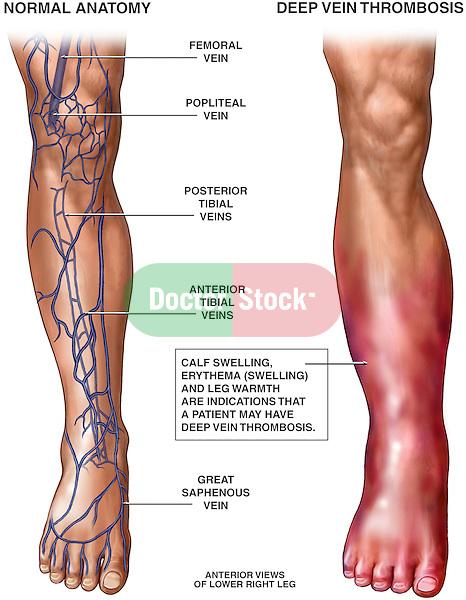 Deep Vein Thrombosis (DVT).