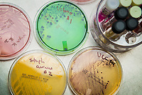 Plates and tubes used by Medical Laboratory Science students to culture microorganisms  during Advanced Clinical Microbiology (MEDT A303) taught by Grace Leu-Burke in UAA's Health Sciences Building.