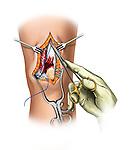Repair of retinacular tear; depicts the surgical repair of a tear in retinaculum