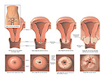 Progression of Cervical Cancer.