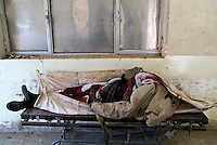 Baghdad, Iraq, April 5, 2003.Al Kindi Hospital, an unidentified civilian's body killed by a US bomb. More than 70 US bombardment victims were admitted in less than 2 hours after a B52 carpet bombing on the Northern outskirts, about a fifth of these were military personel.