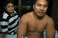 Sailo and Adele Paepaega, proprietors of Faofao Beach Fales, a tourist resort at Saleapaga Lepa on the Southern coast, at the hospital in Apia. Sailo felt the earthquake and knew to check the seawater for signs of a tsunami. He shouted to his guests to run, and managed to save everybody, including his wife and son. The resort however was completely destroyed, and Sailo is suffering from broken ribs, cuts and scatches, and the effects of seawater in the lungs. More than 170 people died when a tsunami triggered by an 8.3 magnitude earthquake hit Samoa and neighbouring Pacific islands on 29/09/2009. Samoa (formerly known as Western Samoa)..