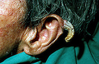 Sebaceous horn of ear. This image may only be used to portray the subject in a positive manner..©shoutpictures.com..john@shoutpictures.com