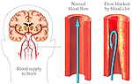 This medical exhibit illustrates normal blood supply to the brain verses blood flow that is blocked by a blood clot.