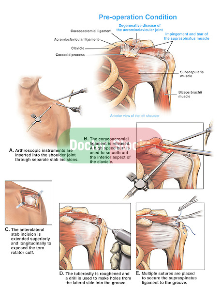 Dramatically depicts degenerative disease of the acromioclavicular, or ac, joint in the left shoulder with arthroscopic surgery repairs. Shows impingement of the supraspinatus muscle, a rotator cuff muscle, and a torn supraspinatus tendon. Surgical steps: A. Arthroscopic instruments  inserted into the shoulder joint; B. Coracoacromial ligament is released and a high speed bur is used to reshape the clavicle; C., D. and E. Smoothing of the bone surface and suturing of the muscle tendon.