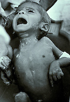 Malnourished child receiving a bath