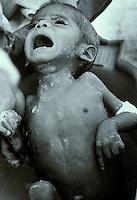 Malnourished child receiving a bath