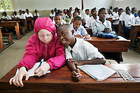 """Nine year old Irene studying at school. Irene is the only albino in her family. She says that when she was small she did not notice that she was different from anyone else. She explains: """"My parents made me feel loved and were always positive about my white skin. But as I got older, I noticed people teasing me because I was different. Sometimes it makes me sad, but I just stay quiet and ignore those people. They don't know anything."""" After an eye examination at the Comprehensive Community Based Rehabilitation in Tanzania (CCBRT) Low Vision Unit, Irene was given sunglasses, spectacles and a telescope. She now sits in the front row in class and uses the telescope to improve the contrast of the words on the board. Discrimination against albinos is a serious problem throughout sub-Saharan Africa, but recently in Tanzania albinos have been killed and mutilated, victims of a growing criminal trade in albino body parts fuelled by superstition and greed. Limbs, skin, hair, genitals and blood are believed by witch doctors to bring good luck, and are sold to clients for large sums of money, carrying with them the promise of instant wealth."""