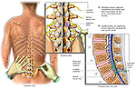 Low Back Pain Management- Lumbar Facet and Epidural Block Injections.