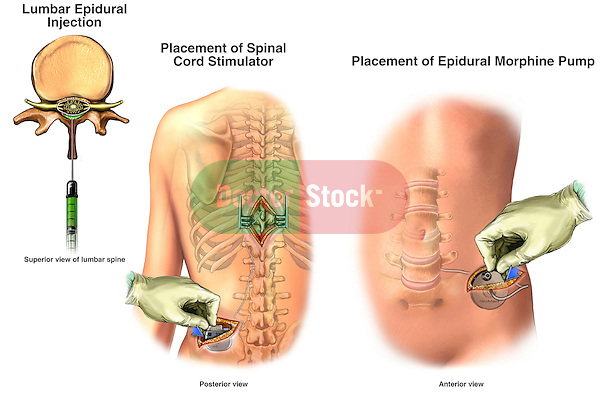 Lower Back Pain - Methods of Lumbar Pain Management. Includes lumbar epidural injection, placement of spinal cord stimulator and surgical implantation of epidural morphine pump device.