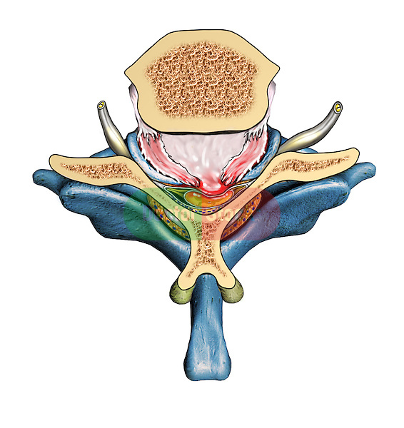 Superior view of locked facets, anterior displacement of C6 over C7, disc herniation and spinal cord impingement. C6 is seen in cut section. Spinal canal narrowing.