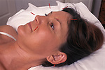 Acupuncture UK female receiving treatment. England 1990s.