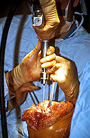 Surgeons performing a total right knee replacement operation in an operating theatre. Here the tibia is being prepared for the prosthetic knee using an oscillating saw. This image may only be used to portray the subject in a positive manner..©shoutpictures.com..john@shoutpictures.com