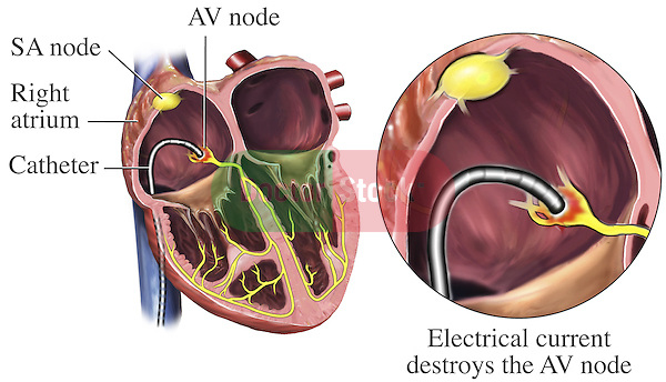 This medical exhibit illustrates the procedure in which a catheter placed within the right atrium can be used to conduct an electricial current which destroys the AV node.