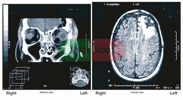 Radiological (X-ray) Evidence of Brain Injury.