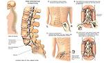 Lumbar Spine Surgery - L5-S1 Spondylolisthesis