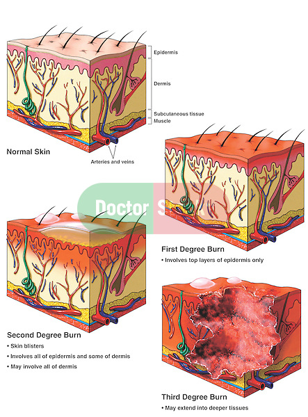 This series depicts skin burns at the microsopic level, classifying them as first, second and third degree.  The first illustration depicts a normal section of skin with labels for epidermis, dermis, subcutaneous tissue, muscle, arteries and veins. The subsequent three medical drawings display first, second and third degree burns, each classified by the extent of damage to the skin layers from the epidermal to the dermal to the deepest tissues.