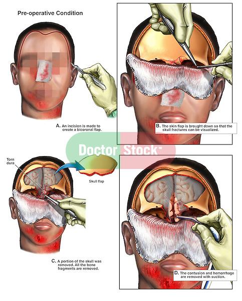 Brain Surgery - Surgical Repairs of Traumatic Brain Injury