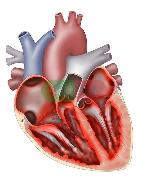 Acute Bacterial Endocarditis