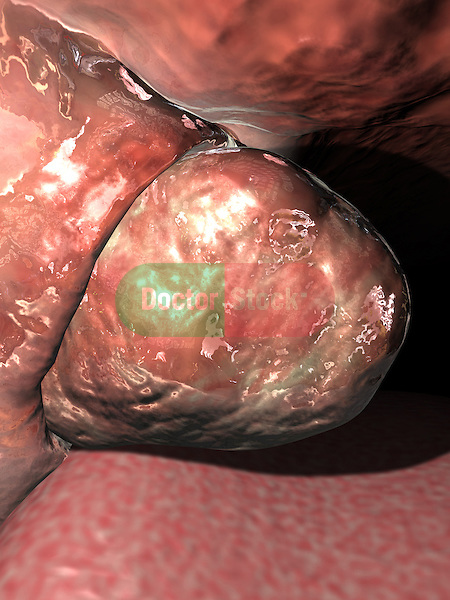 Enlarged Tonsil; this 3d medical image features a detailed view of the tonsils as seen in its with in the oral cavity. the tonsils are enlarged and inflamed indicating infection.