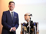 world's first bionic man rex