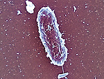 Salmonella enteritidis bacteria, causes salmonellosis, typhoid fever, food poisoning, 40,000x magnification