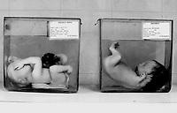 Ho Chi Mihn City / Vietnam.<br /> Conseguenze della guerra in Vietnam 40 anni dopo.<br /> Tu Du Hospital, centro ospedaliero per l'assistenza e la cura dei bambini nati con gravi malformazioni a causa dell'agent orange.In una camera vengono conservati in flaconi di formalina i feti dei bambini nati morti a causa delle gravi malformazioni conseguenti alle mutazioni indotte dall'agent orange ingerito dai genitori durante la guerra o assunto attraverso il ciclo alimentare. Secondo i dati della Croce Rossa Vietnamita le vittime della sindrome da Agente Arancio sono 4 milioni. Decine di migliaia i bambini nati morti.<br /> Foto Livio Senigalliesi.<br /> Tu Du Hospital - Ho Chi Minh City / Vietnam.<br /> Consequenses of the war in Vietnam 40 years later.Fetus born dead or died soon after birth because of serious deformities. The fetus are preserved in formaline. A silent massacre which has been going on since the seventies and causes thousands of innocent victims every year. According to the Red Cross the victims affected by Agent Orange Syndrome are 4 milions.<br /> Photo Livio Senigalliesi