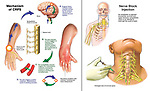Post-surgical  Reflex Sympathetic Dystrophy (RSD) of the Upper Extremity and Hand with Nerve Block Injection