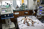 6 month old, Baby Kaushik sleeps at the Intensive Therapy Unit of the Pediatric Section of the Narayana Hrudayalaya in Bangalore, Karnataka, India. Dr. Shetty conducted an open heart surgery on the child a day before. Photo: Sanjit Das/Panos