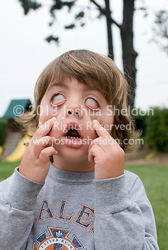 Boy making faces<br />