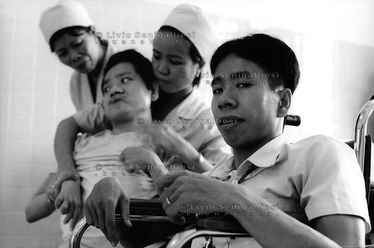 Tu Du Hospital - Ho Chi Minh City / Vietnam.<br /> Conseguenze guerra in Vietnam 40 anni dopo.<br /> Nguyen Duc, 24 anni, vittima dell'agente arancio proviene dal villaggio di Sa Thay, una delle zone più contaminate dalla diossina. Pur affetto da gravi malformazioni conduce una vita quasi normale e lavora nello staff dell'ospedale. Il fratello Viet, a cui era unito alla nascita, è stato più sfortunato. Vegeta letteralmente nel letto, curato dalle infermiere e dalla madre Lam Thi di 52 anni, irrorata più volte durante la guerra dall'Agent Orange.<br /> Foto Livio Senigalliesi.<br /> Tu Du Hospital - Ho Chi Minh City / Vietnam.<br /> Consequenses of the war in Vietnam 40 years later.In the picture Nguyen Duc born together with his son Viet 24 years ago. The 2 twins came from the district of Sa Thay, in the Province of Kontum, one of the places most contaminated by the deadly herbicide.Joined at the pelvis, 2 legs, one penis, they were operated and divided when they were 8. Duc was luckier, thanks to the treatments he overcame the physical disabilities, studied and now is working in the staff of the hospital. His brother Viet has been vegetating in his bed, attended by the nurses and by his mother La Thi (52) sprayed during the war times by US airplanes.<br /> Photo Livio Senigalliesi