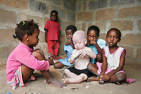 """One year old Yusufu plays with some neighbours' children. His mother Yusufu Mwanahawa doesn't have a proper job but survives by buying large bricks of soap which she breaks into smaller bars and sells by walking door to door. """"Life is hard for me,"""" she says. Her problems started when she gave birth to Yusufu. """"The moment my husband saw Yusufu he got very angry and left me, saying that I had slept with a 'musungu', a white man. He couldn't believe that he also carried the albinism gene."""" Mama Yusufu receives a little help from the Tanzania Albino Society. """"Without them I wouldn?t be able to make it till the end of the month."""" She knows that she has to protect Yusufu against the sunlight but she is forced to take him with her when she is selling soap. Discrimination against albinos is a serious problem throughout sub-Saharan Africa, but recently in Tanzania albinos have been killed and mutilated, victims of a growing criminal trade in albino body parts fuelled by superstition and greed. Limbs, skin, hair, genitals and blood are believed by witch doctors to bring good luck, and are sold to clients for large sums of money, carrying with them the promise of instant wealth."""