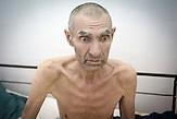 Wir sprechen mit Gheorghe auf der Intensivstation. Er war<br />Fernfahrer, ist weite Strecken durch Russland und durch die<br />Ukraine gefahren. Er ist geschieden und kam in das Krankenhaus,<br />als er sich bereits sehr schlecht fühlte, er hatte Wasser in den<br />Lungen. Bei der ersten Untersuchung wurde festgestellt, dass er<br />an TB leidet, weitere Untersuchungen haben ergeben, dass er<br />außerdem schon seit sehr langer Zeit HIV-positiv ist und die<br />Krankheit gerade ausgebrochen ist. Er will es nicht wahrhaben,<br />sagt, dass die Ärzte des Krankenhauses fantasieren, er hätte eine<br />Blutuntersuchung in Chisinau machen lassen und wisse sicher,<br />dass er kein AIDS habe. // Moldova is still the poorest country of Europe. Hopes to join the European Union are high. After progress in the past years tuberculosis is on the rise again. The number of new patients raise since 2010 and is on a level that has not been reached since the late 90s.