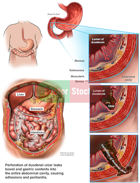 Perforation of Duodenal Ulcer with Widespread Peritonitis