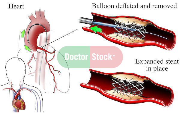 This exhibit features an orientation view of the male torso and heart showing a catheter advanced through the aorta to the main anterior coronary artery. Two detailed cut-sections through a diseased section of artery illustrating the artery after balloon dilation and guide wire removal. In the final image a fully expanded wire-stent can be seen in place reestablishing the lumen of the artery.