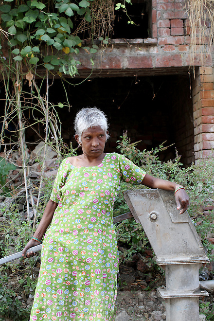 Kiran Devi comes from a small village that is afflicted with water pollution from nearby leather tanneries. It is suspected that increased exposure to harmful toxins during mothers' pregnancies might be causing the increased number of children being born with mental disabilities in the villages outside Kanpur.