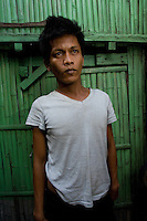 Celedinio Pindengi, 32, who sold his kidney to the Filipina wife of a Brazilian for 90,000 pesos.  In the Basico area more than 3000 have sold their kidneys mostly to foreigners.<br /><br /><br />PHOTO BY RICHARD JONES