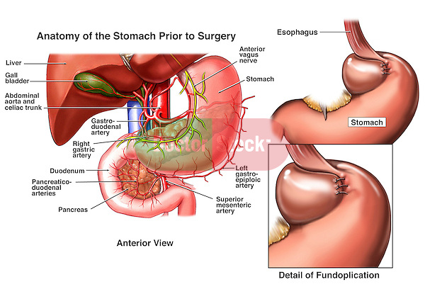 Nissen Fundoplication Surgery. Shows a surgical procedure used to alleviate gastroesophageal reflux disease (GERD), also called chronic heartburn.
