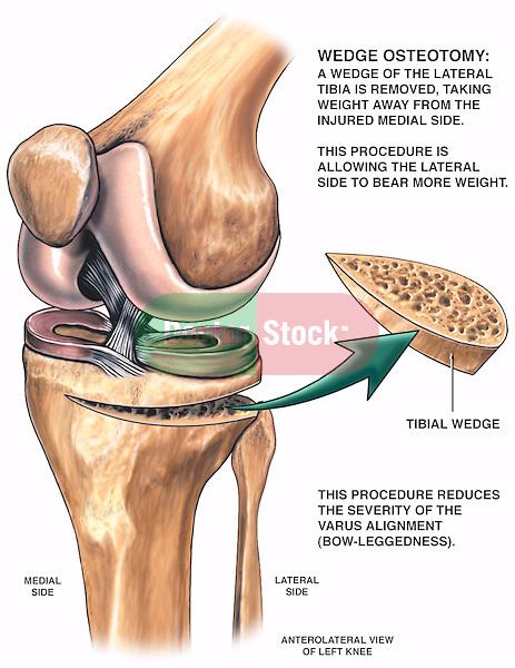 Knee Surgery - Tibial Wedge Osteotomy Procedure