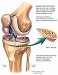 Knee Surgery - Tibial Wedge Osteotomy Procedure