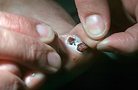 Maglignant melanoma between the toes, it is both a commom and dangerous site. This image may only be used to portray the subject in a positive manner..©shoutpictures.com..john@shoutpictures.com