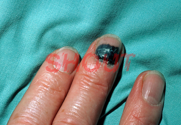 Sub-ungual haematoma. This is a collection of blood beneath a nail following a trauma. The pain can quickly be alleviated by burning or drilling a hole through the nail to release the blood. This image may only be used to portray the subject in a positive manner..©shoutpictures.com..john@shoutpictures.com
