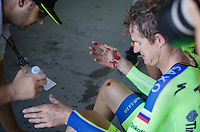 Michael Rogers (AUS/Tinkoff-Saxo) badly bruised in a crash  at +50km/h<br /> <br /> Elite Men's Team Time Trial<br /> UCI Road World Championships Richmond 2015 / USA
