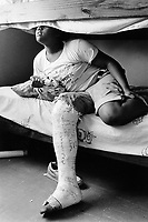 """USA. New York City. Spanish Harlem. Bente has her right leg in plaster due to a broken ankle. Bunk beds and teddy bear. The words written on the white t-shirt say: Somebody in New York loves me. Bente and her Puerto Rican family lives below the poverty line and receives public assistance (AFDC, Home Relief, Supplemental Security Income and Medicaid). The family resides in units managed by the New York City Housing Authority (NYCHA) which provides housing for low income residents. NYCHA administers rental apartments in facilities, popularly known as """"projects"""". Spanish Harlem, also known as El Barrio and East Harlem, is a low income neighborhood in Harlem area. Spanish Harlem is one of the largest predominantly Latino communities in New York City. 05.09.89 © 1989 Didier Ruef ."""