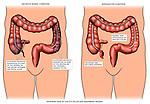 Appendicitis - Inflamed Appendix