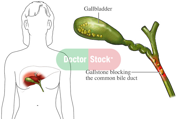 This medical exhibit illustrates the blockage of the common bile duct by gallstones.