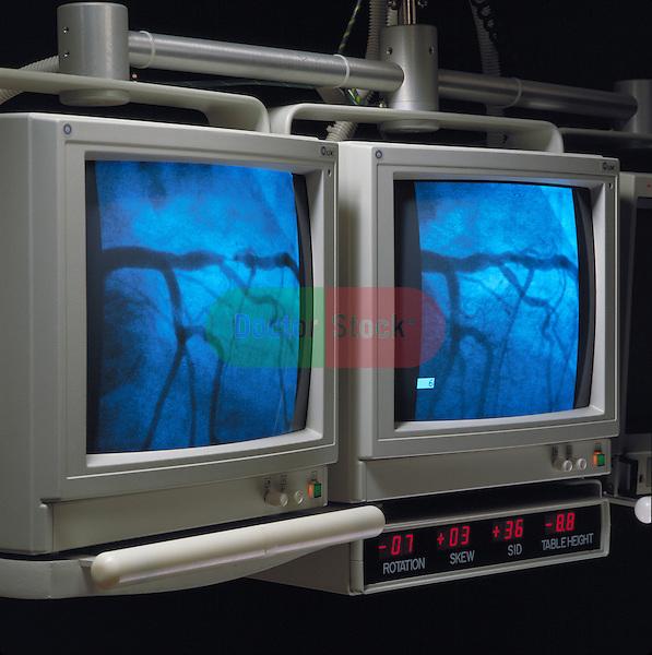video monitors displaying heart during cardiac catherization