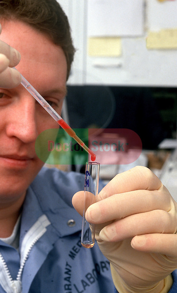 Lab worker puts blood sample into test tube